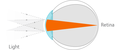 Non-myopic eye diagram